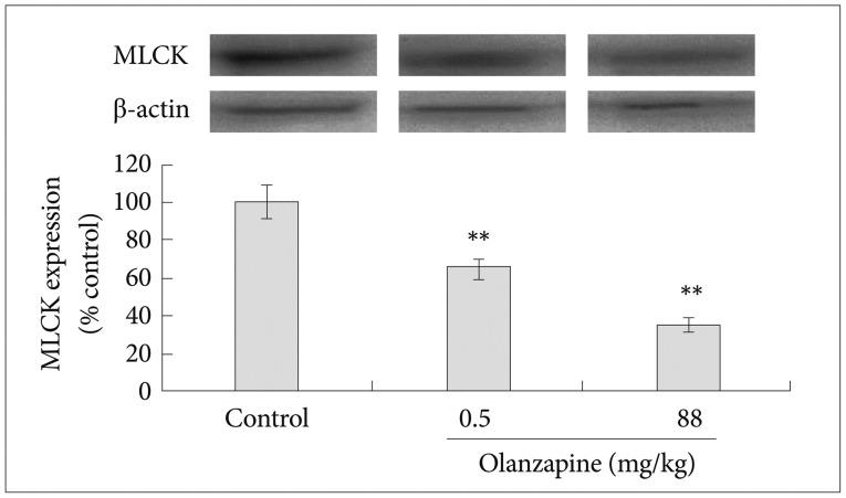 hydroxyzine hcl 25 mg vs benadryl
