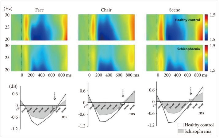 Dysfunctional Patterns of Gamma-Band Activity in Response to