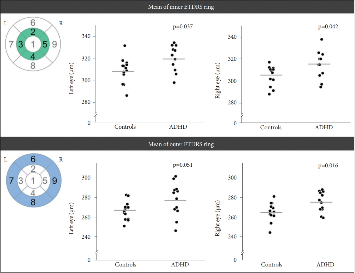 Pilot Study: An Ocular Biomarker for Diagnosis of Attention